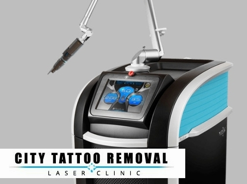 http://citytattooremoval.com/picosure-tattoo-removal website